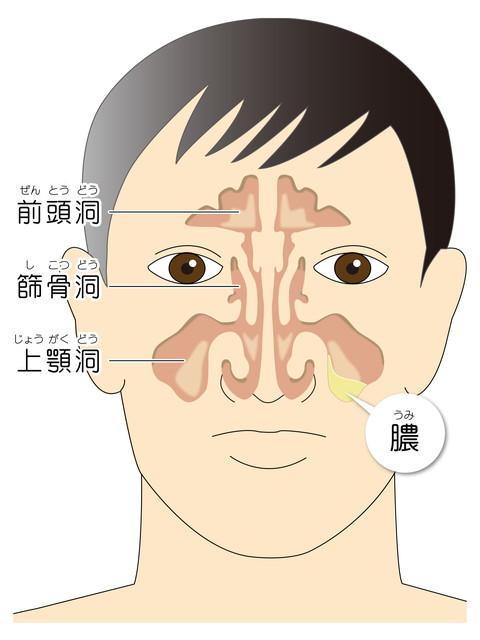 鼻づまりと頭痛が続く副鼻腔炎